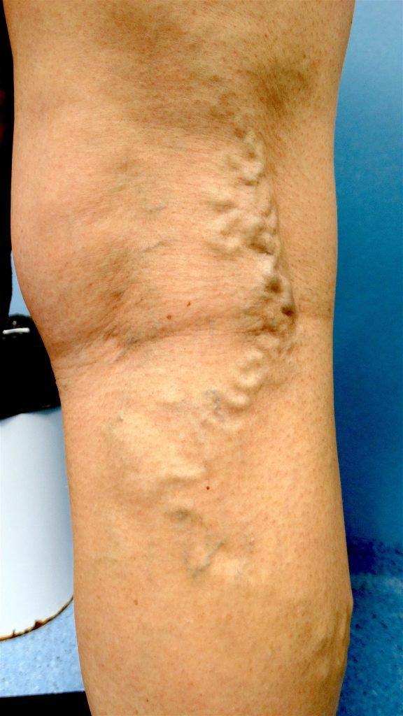 Venas de varicosas tratamiento del recuperación